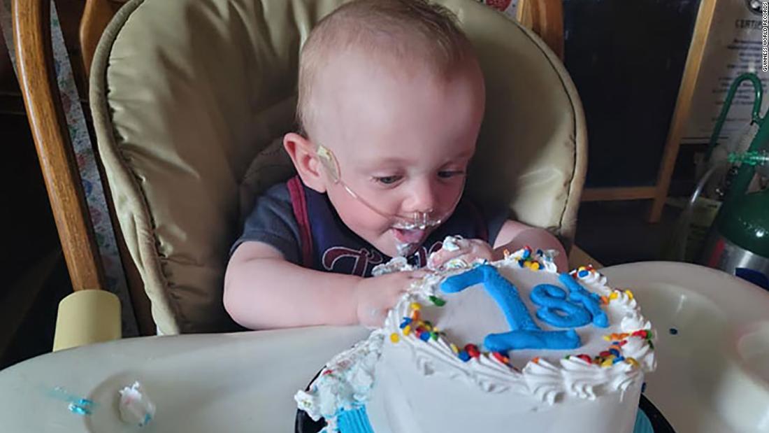210618001701 01 most premature baby birthday super tease