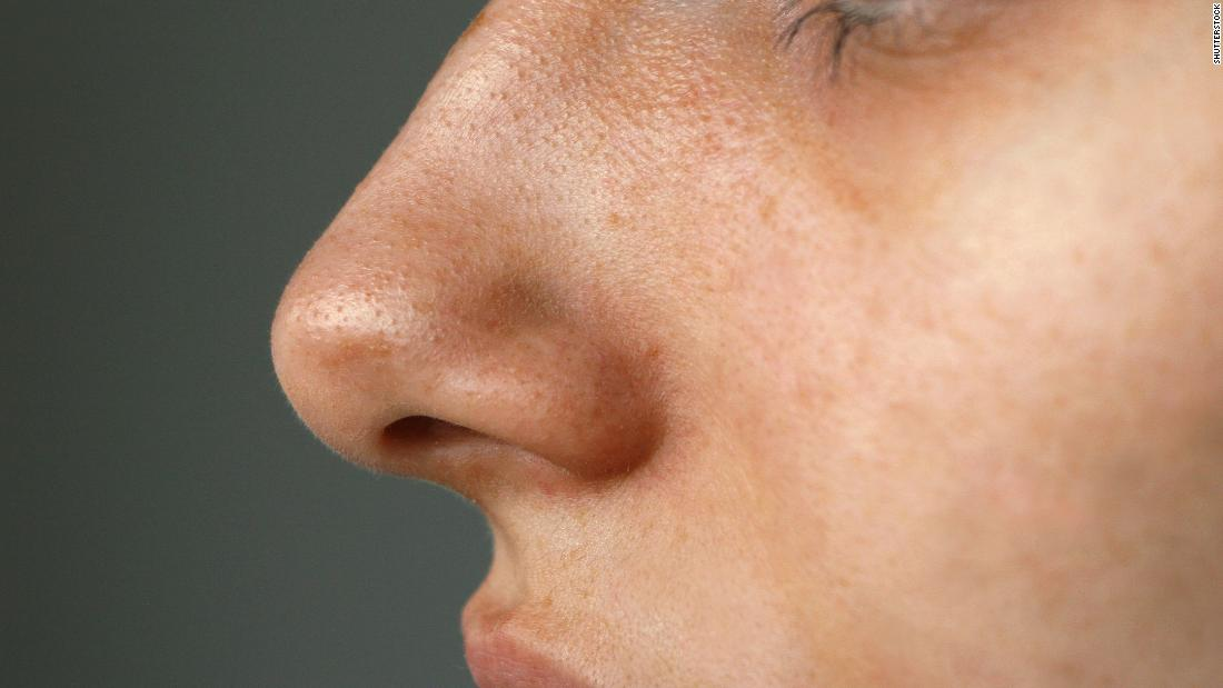Covid-19 got your nose? Study finds when taste and smell return