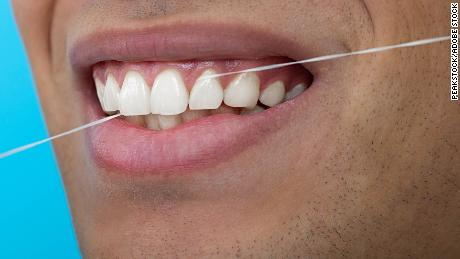 Flossing may help more than your teeth