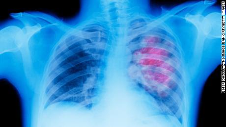В отчете говорится, что уровень смертности в США падает от многих видов рака, но не от всех.