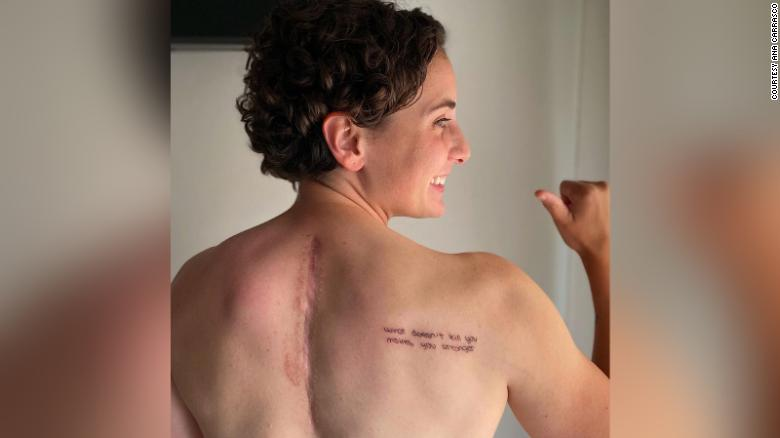 Ana Carrasco shows the scars that resulted from the accident and surgery.
