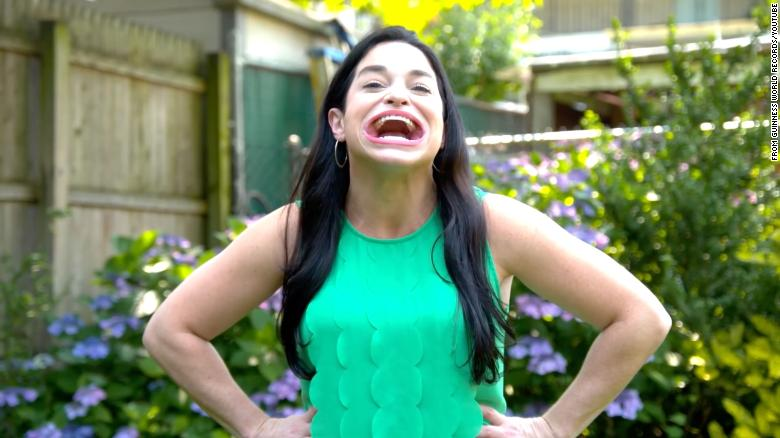 This woman has the largest mouth in the world, according to Guinness