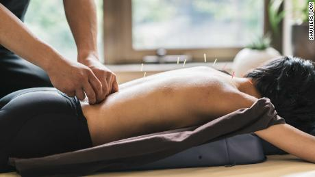 Acupuncture, a traditional Chinese medicine practice, is now used around the globe as a complementary therapy for pain relief.