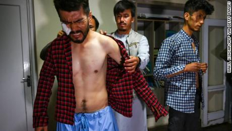 'I thought this was the end of my life:' Afghan journalists describe savage beatings by Taliban