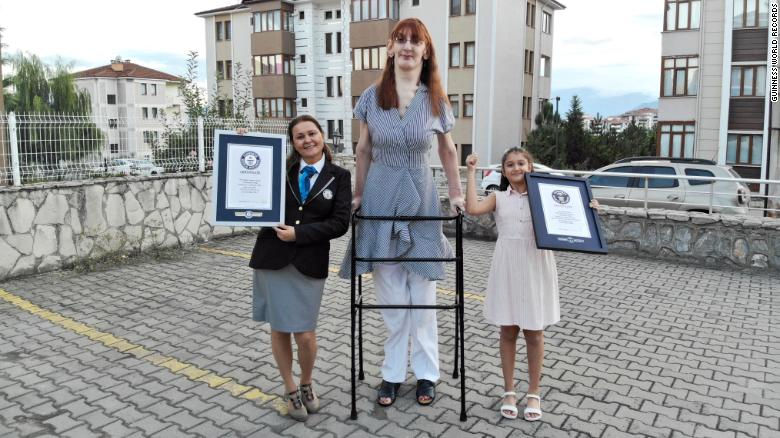 The world's tallest living woman is a 24-year-old from Turkey